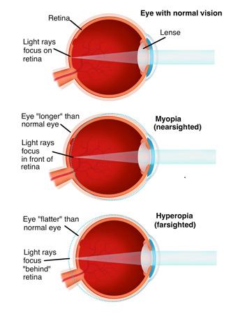 Hyperopia myopia és asztigmatizmus - A myopia, a hyperopia és az asztigmatizmus tünetei